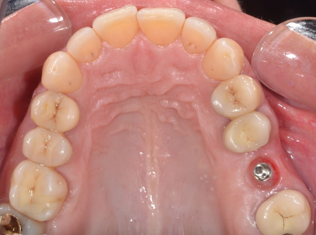 Implant dentaire : Quels sont les types d'implants ?