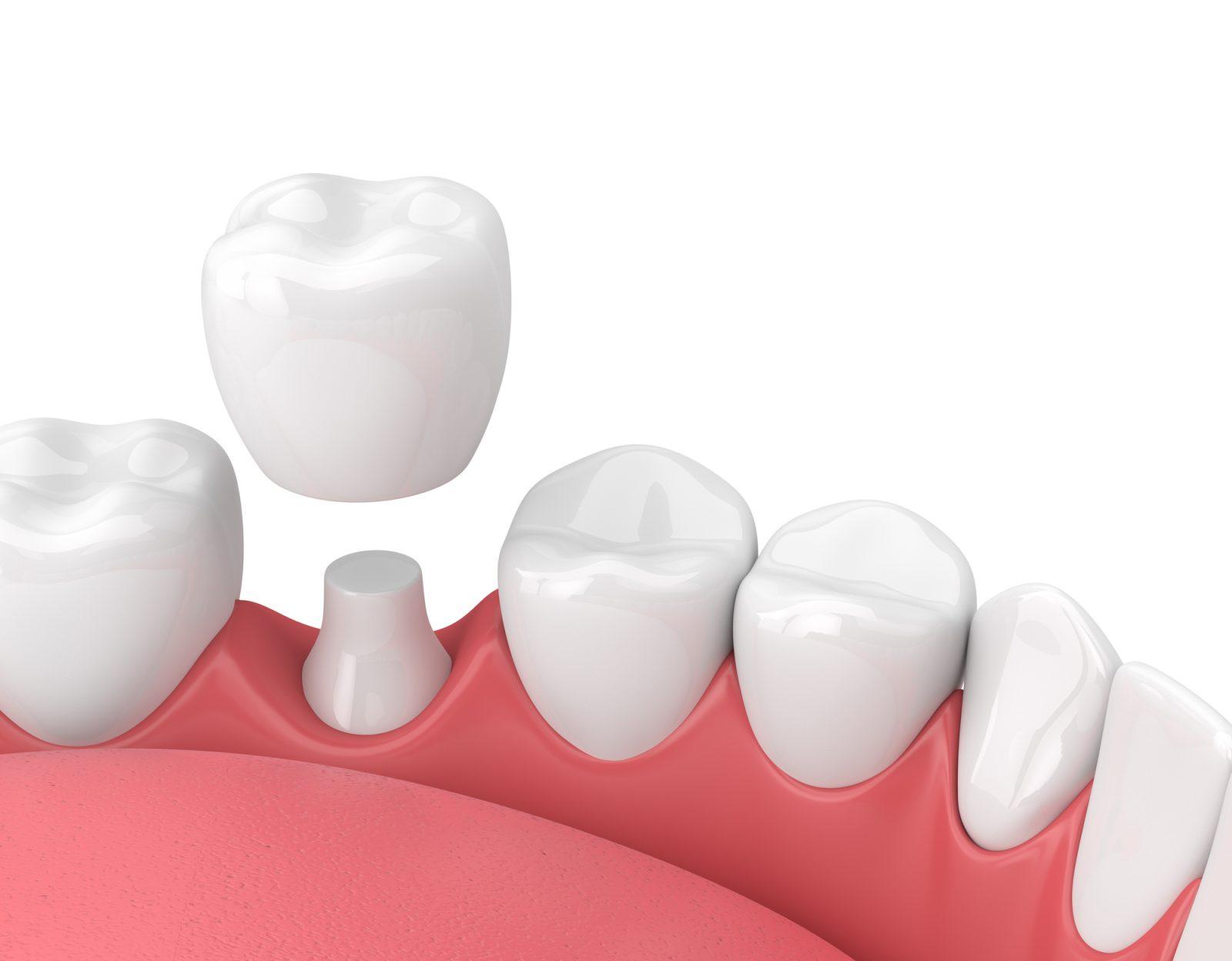 Implant dentaire : un dentiste mène la chirurgie ?